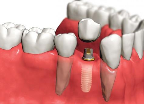 implantac